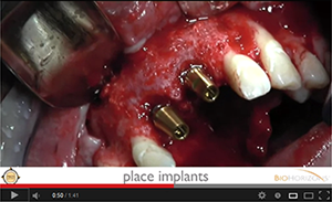 Two Anterior Teeth Replaced Using Tapered Internal with Laser-Lok